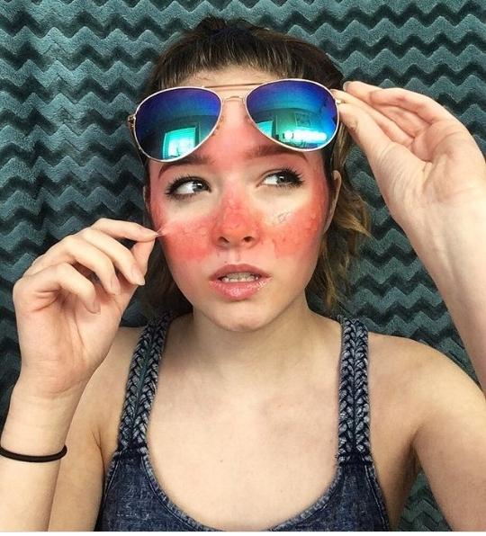 Sunburn makeup ideas