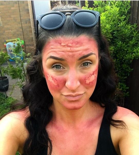 sun burn makeups