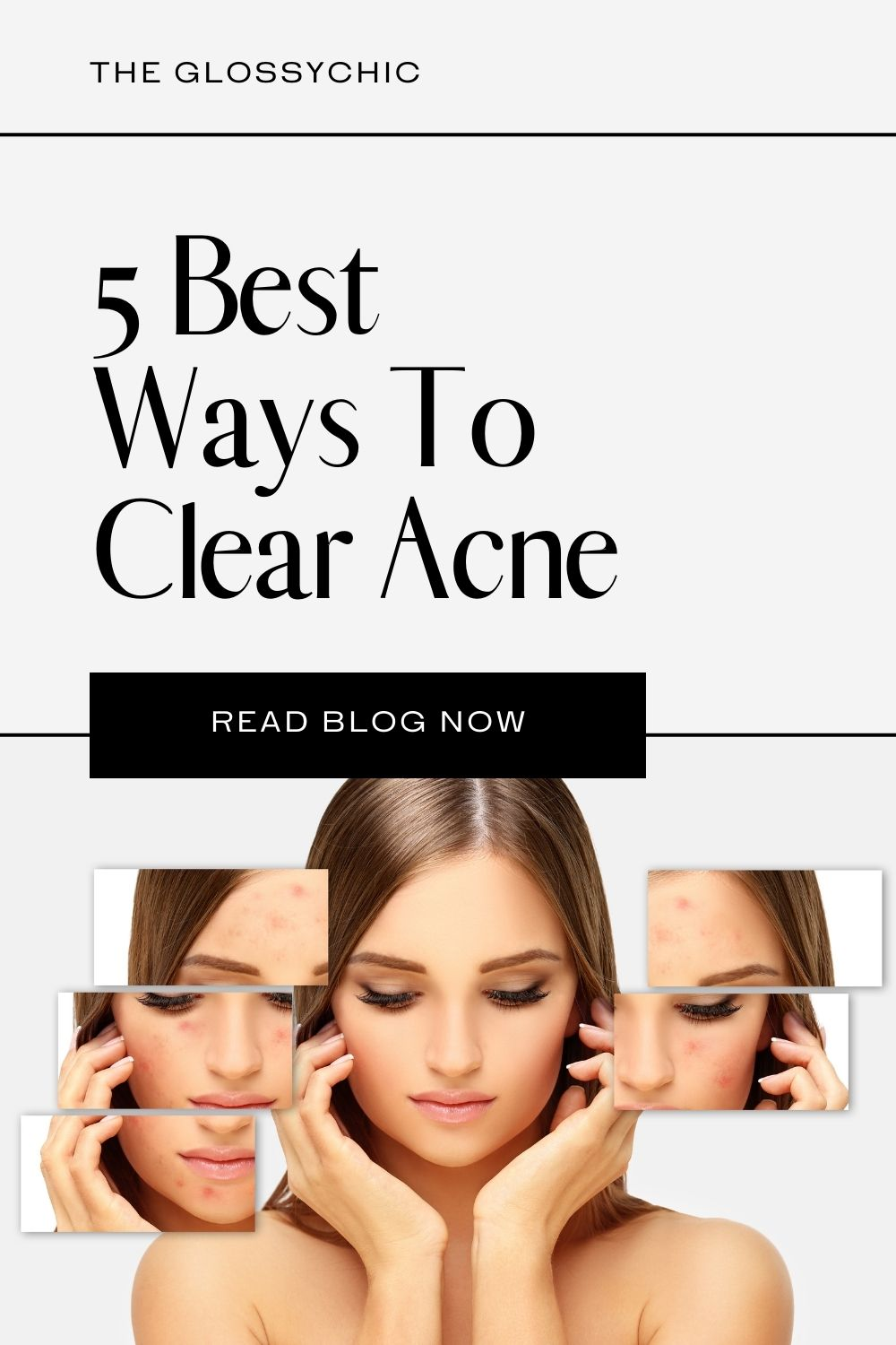 5 best ways to clear acne
